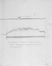 historische EEG-Ableitung